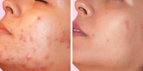 Nitro Spray für Sonnenschäden am Gesicht